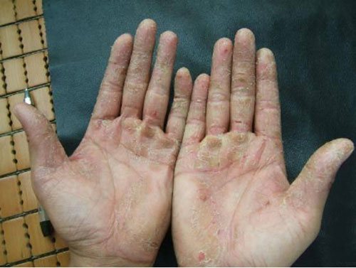 Understand the Symptoms of Ichthyosis