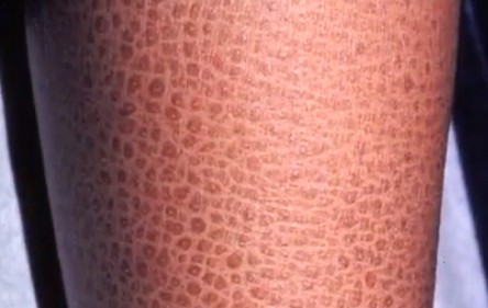 Fish Scales On Legs