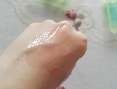 Daily skin care advises for ichthyosis patients