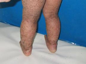 Ichthyosis