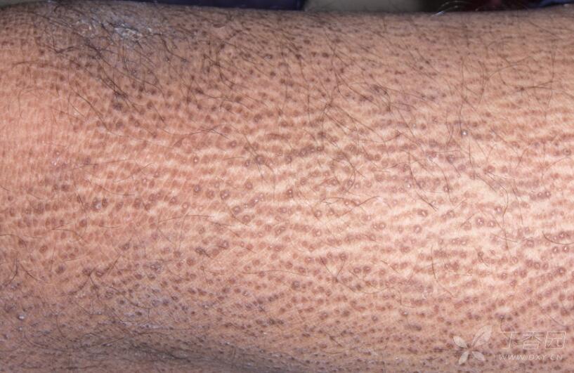 Ichthyosis Vulgaris
