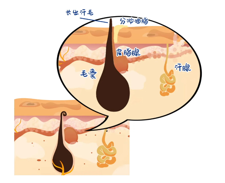 Fumigation Technology Can Solve The Accumulation Of Skin Scales And Restore The Function Of Glands